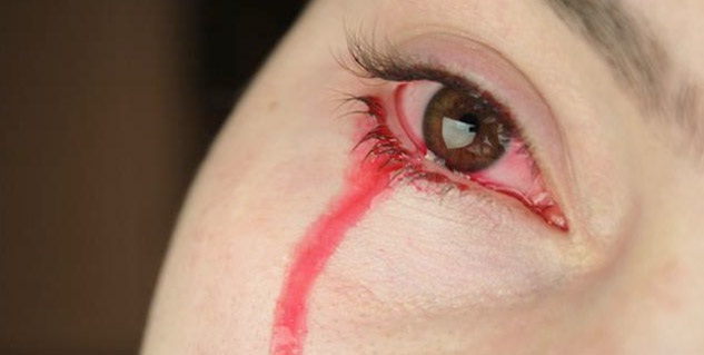 Bloody tears during periods